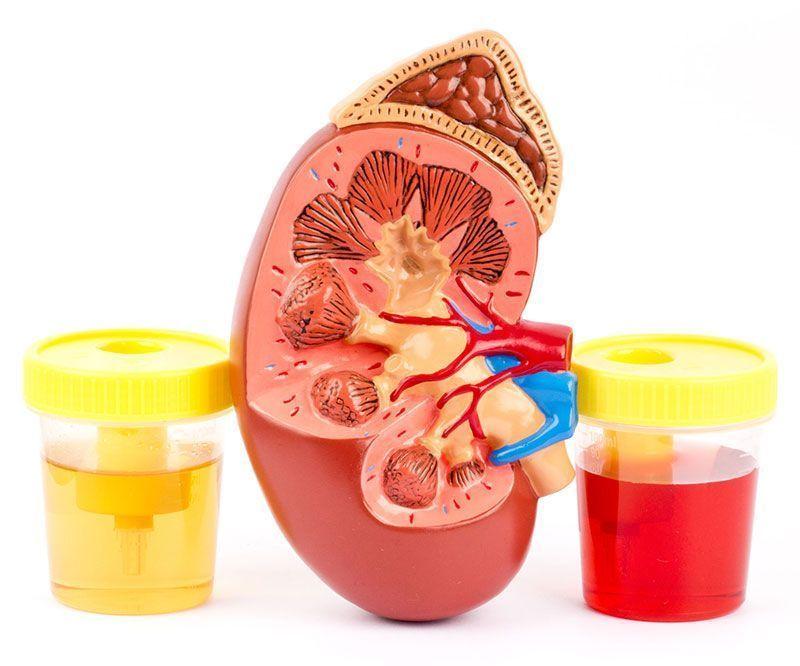 análisis urología